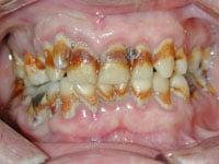 neesh-dental-great-dental-hygiene-10-tips