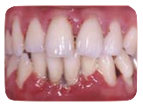 Periodontal Disease and the link to Diabetes