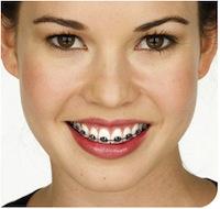 braces