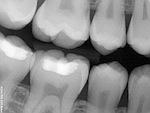 Dental Digital Xrays