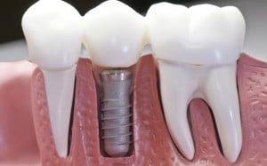 home-implants-300x187