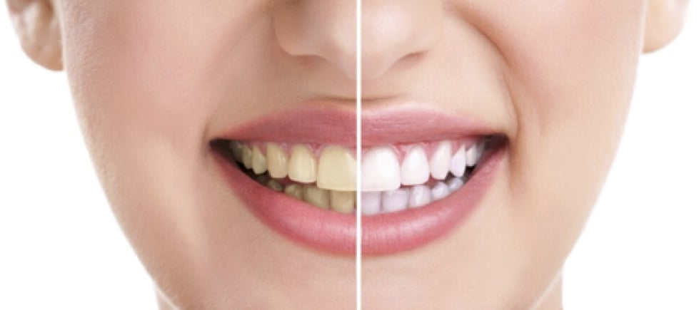 Zoom Teeth Whitening In Covina California