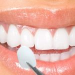 Instant Orthodontics via Porcelain Veneers