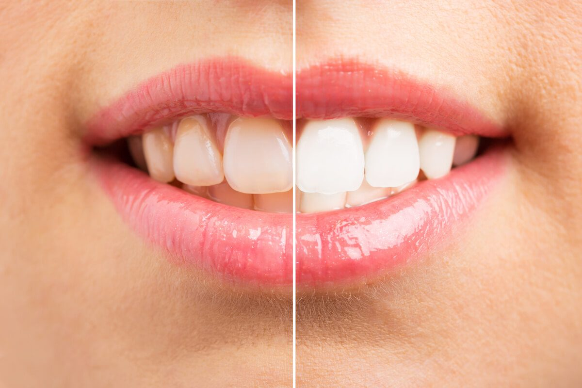 Don't DIY Your Smile: Why You Need Professional Teeth Whitening