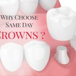 Why You Deserve a Beautiful Smile Sooner Rather Than Later With Same Day Crowns