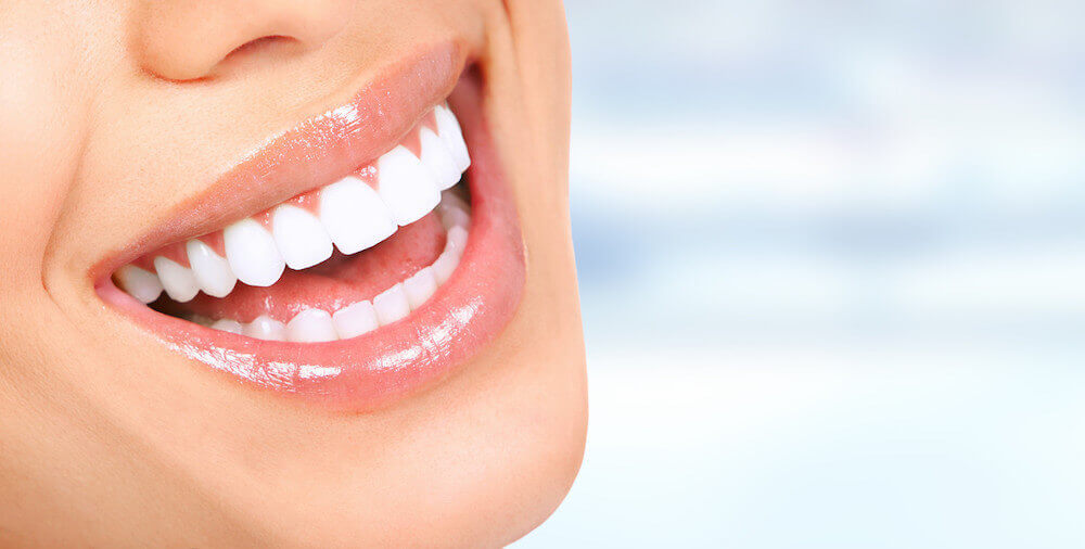 What Are the Pros and Cons of Teeth Whitening?