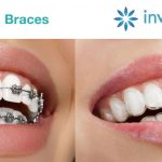 Invisalign vs Braces: Which Choice is Right for You?